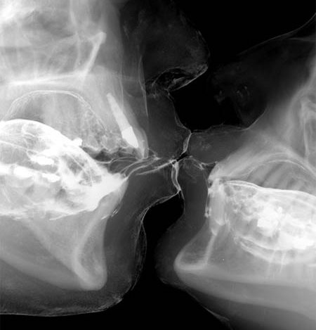 x-ray-kiss